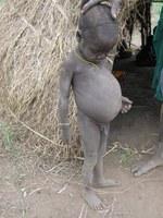 Food shortage worsens along the Omo